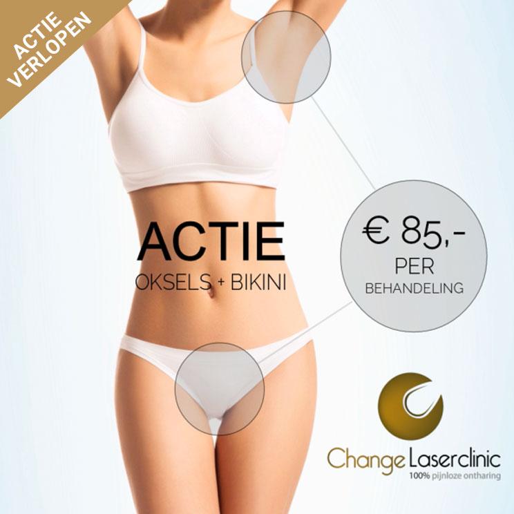 change-laserclinic-actie-oksels-bikini-2019