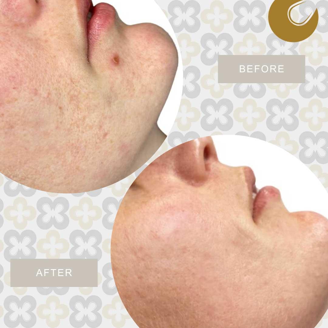 Resultaat huidverstrakking