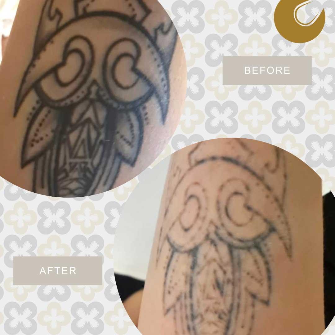 Resultaat tatoeage verwijderen met laser